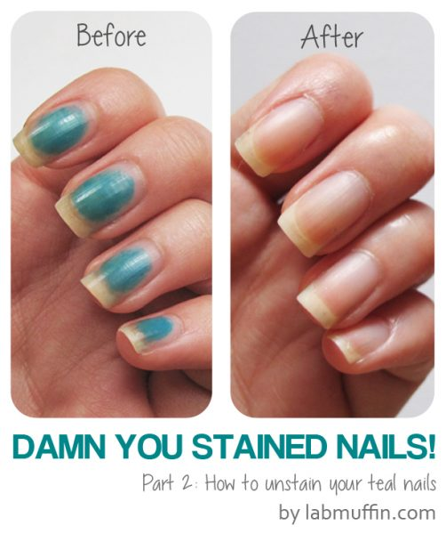 Damn You Stained Nails! Pt 2: How to remove stains
