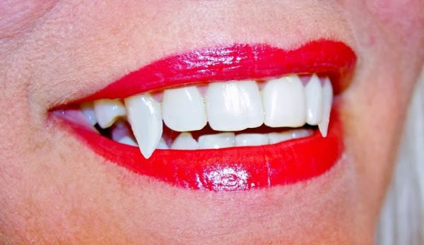 Home teeth whitening – a basic guide