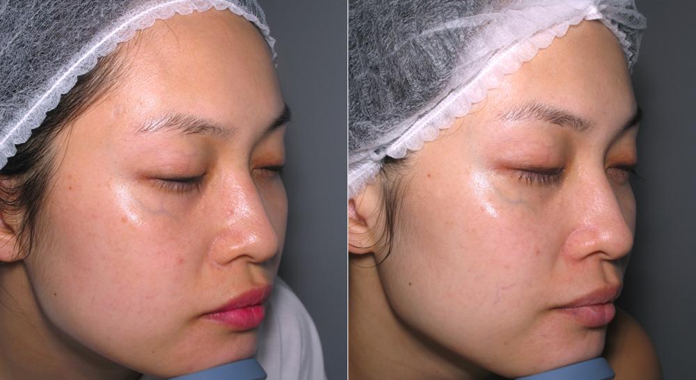 My Ultraceuticals RVR90 Skin Brightening Experience