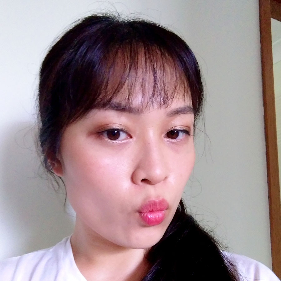My Masseter Reduction Experience