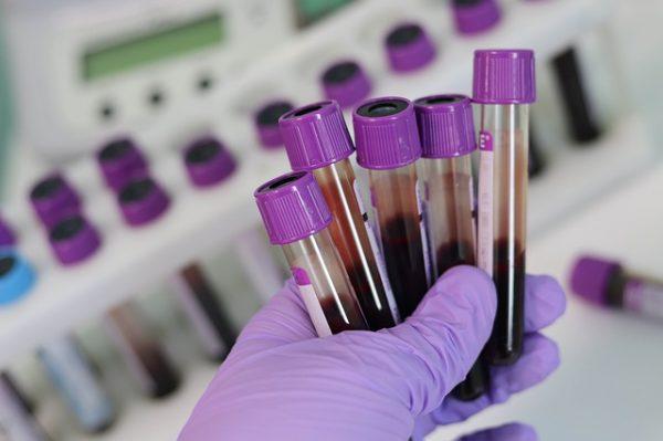 lab blood samples
