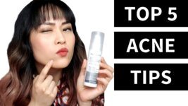 Video: My Top 5 Acne Tips