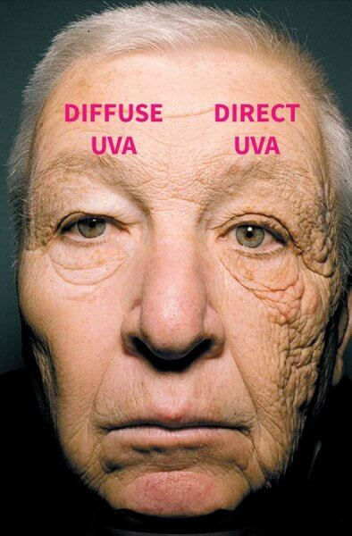 UVA exposure in a truck driver